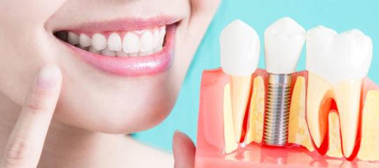 Remplacer toutes les dents avec implants dentaires